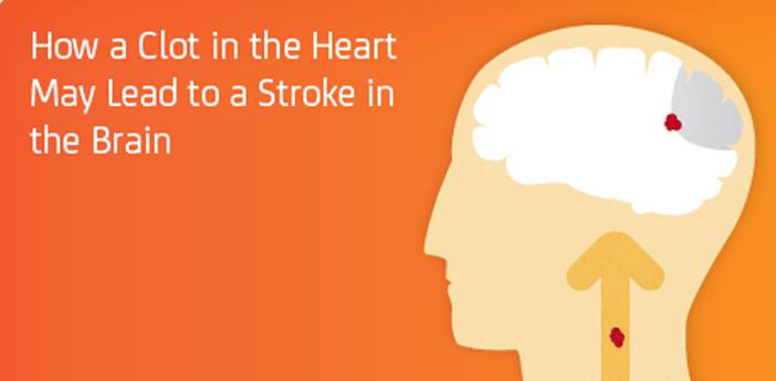 538f744d7f1316ec7c1f1285_brain-heart.jpg