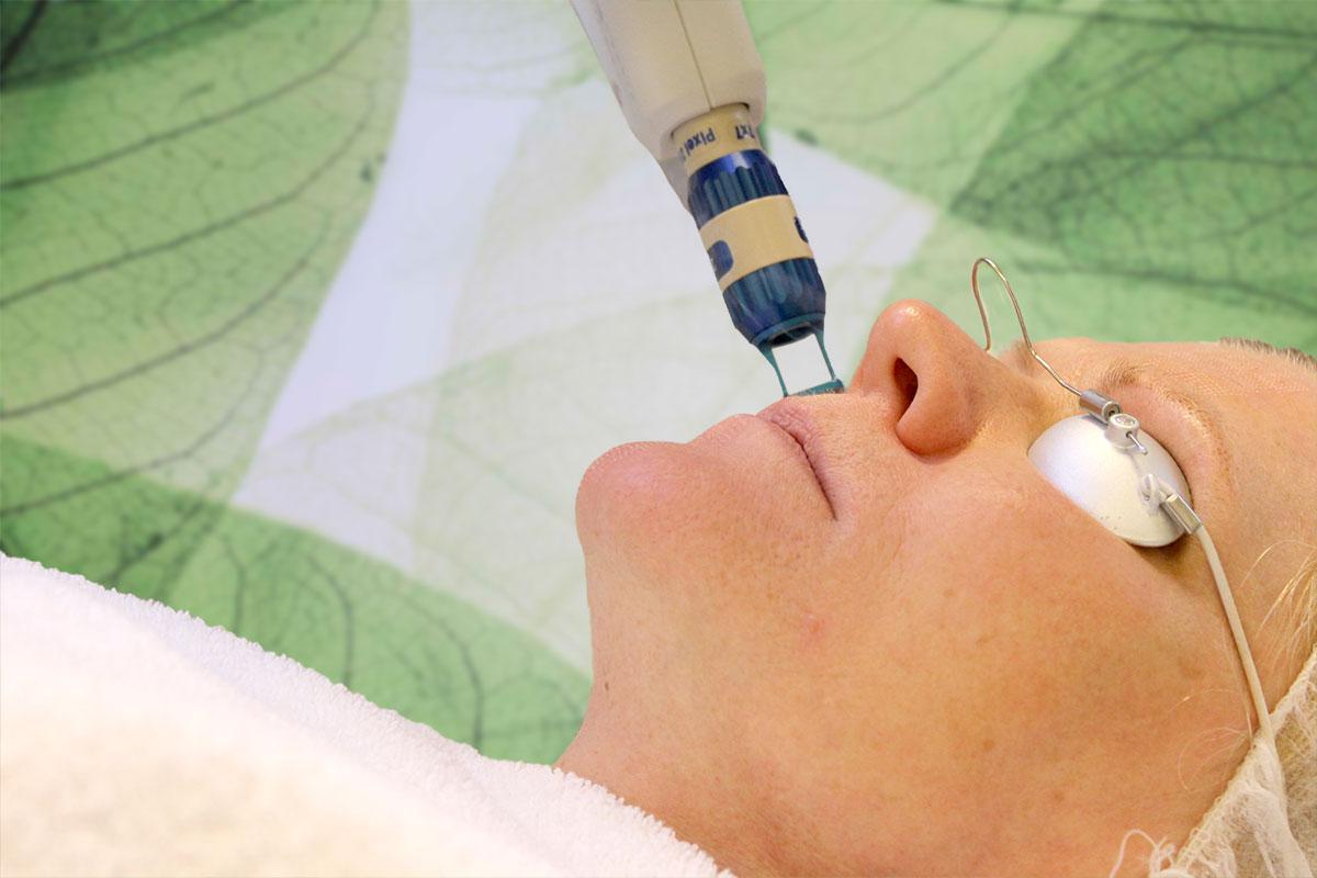 Fractional laserskin behandeling