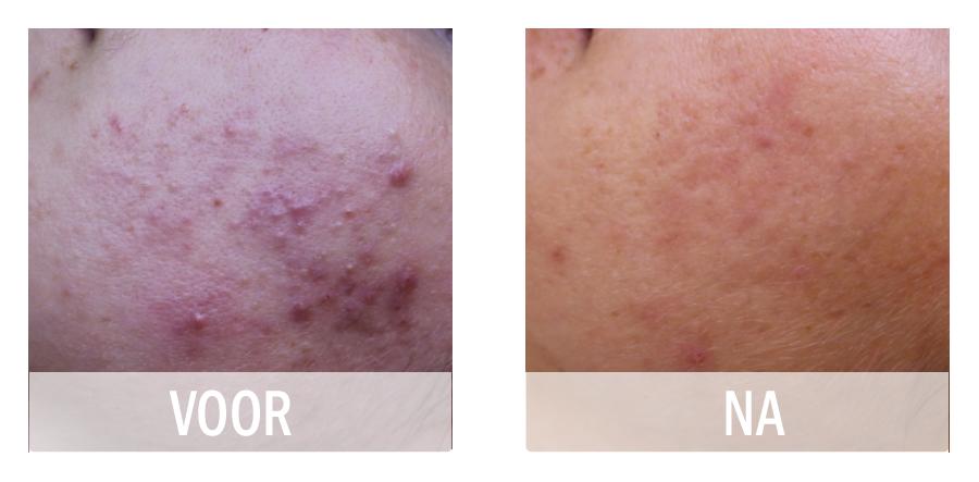 Acne voor en na behandeling