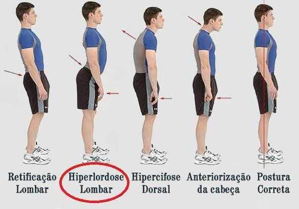 postura sana, sin dolor cervical, dolor lumbar. Mejora tu postura