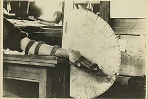WWI-era Apparatus to Measure Wrist Extension
