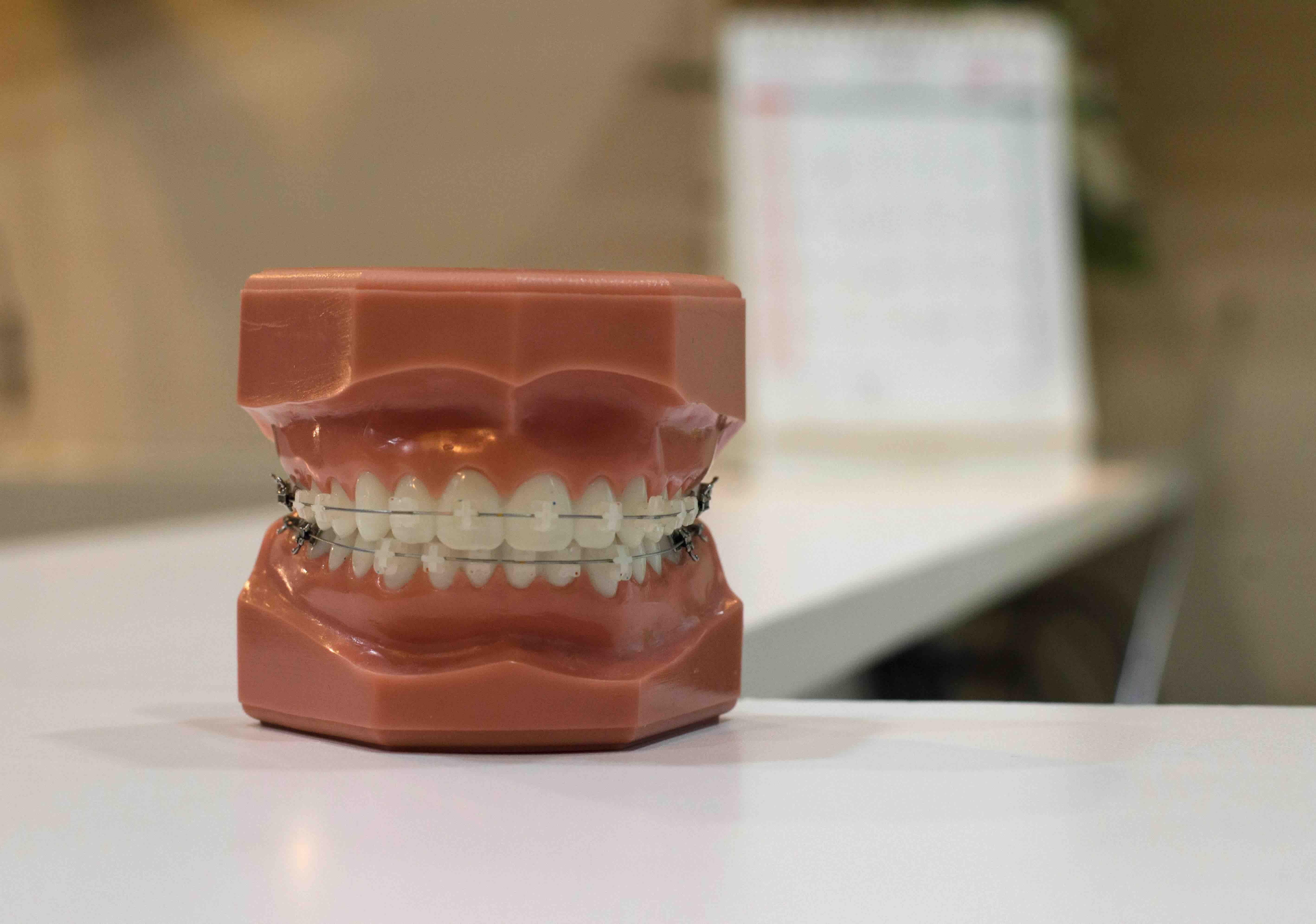 Should I get braces or Invisalign?