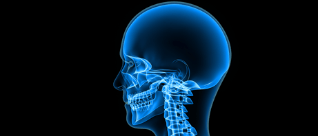 Head, Neck x-rays to diagnose problems with sight, smell and hearing
